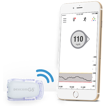 Dexcom G5 for iPhone
