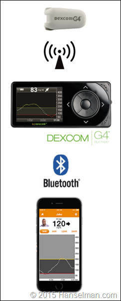 How the Dexcom G4 system works