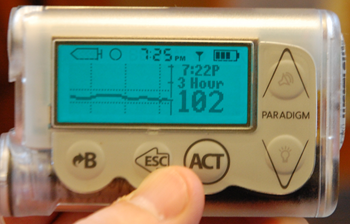 A Diabetic Product Review for Non-Diabetics - The Medtronic MiniMed